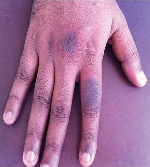 Figure 1: Fixed drug eruption in the form of erythematous plaques on the dorsal aspect of the right index finger and the base of the right middle finger