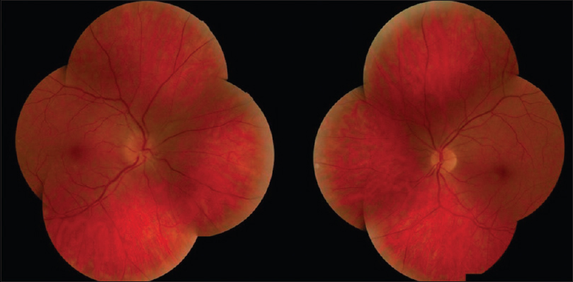 Figure 1: Fundus photograph. Blurring of the optic disk margin from edema with peripapillary hemorrhages in the right eye and normal optic disc in the left eye
